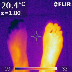 Infrared Image Of A Cold Left Foot 25C With 19C Toes Compared To Warm 33C Right